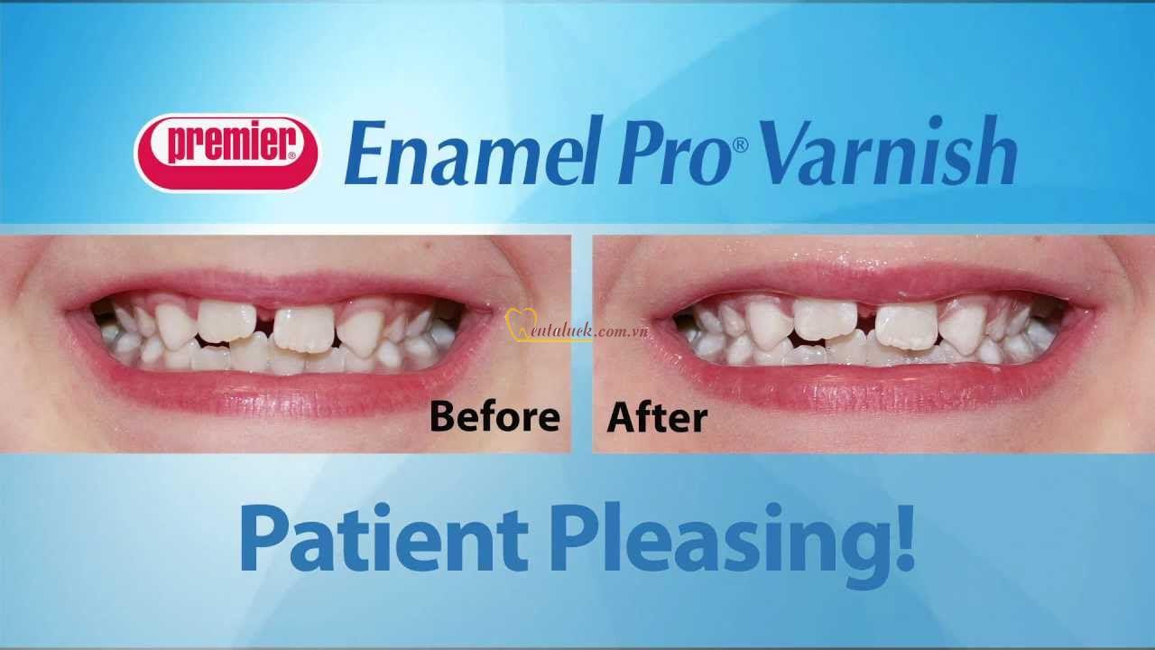 Ngừa sâu răng Enamel Pro Varnish
